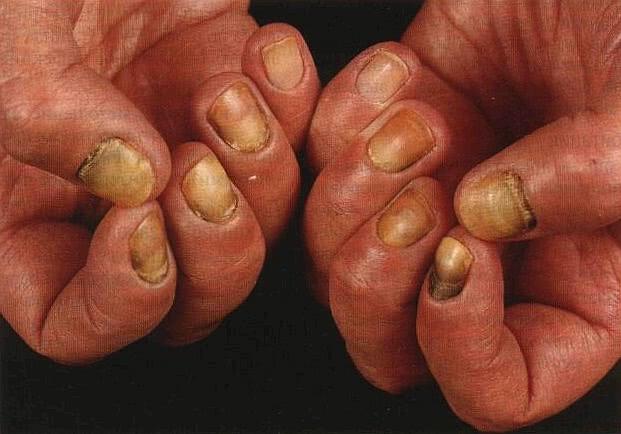Колики в желудке у взрослых симптомы и лечение