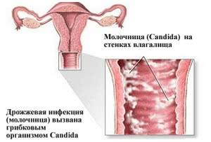 Молочница у беременных