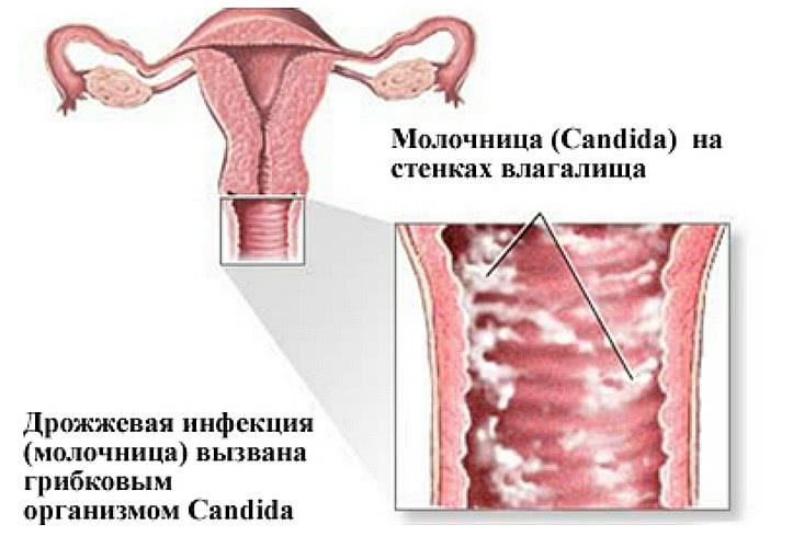 Молочница при беременности симптомы и лечение