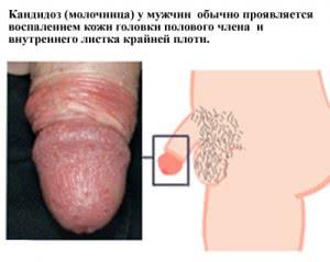 Симптомы молочницы у мужчин