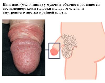 Кандидоз у женщин симптомы фото лечение и препараты