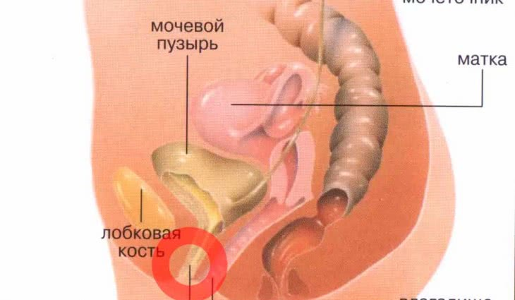 Рецидивирующая молочница