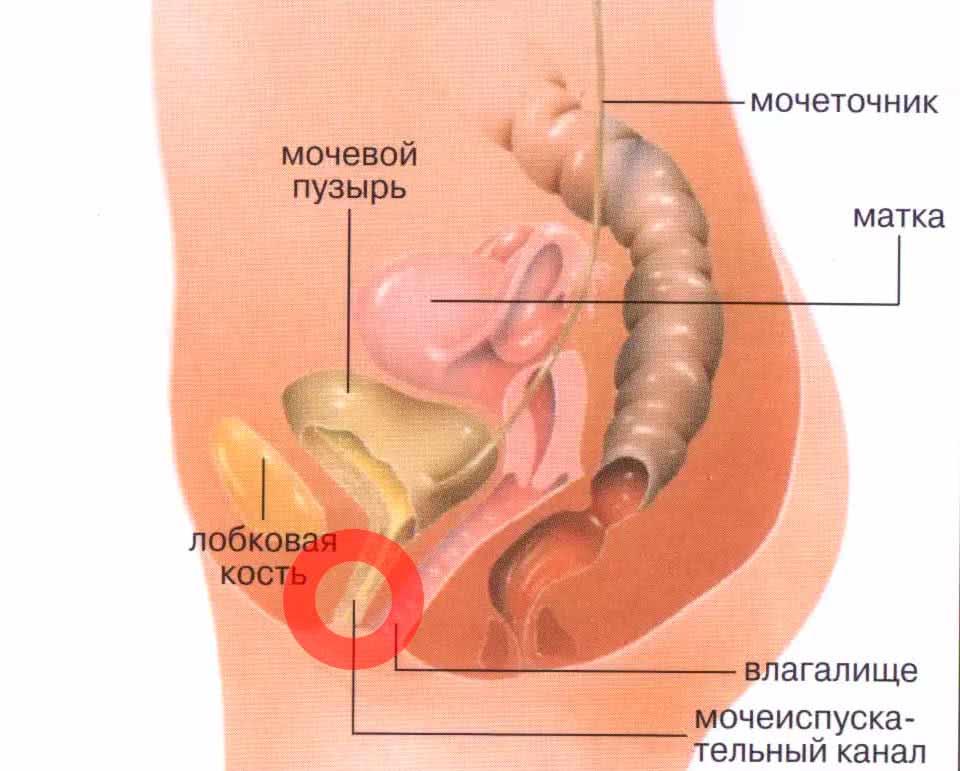 Рецидивирующая молочница эффективное лечение — Мой гинеколог