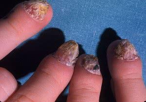 Хронический Кандидоз ногтей