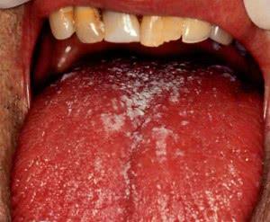 Кандидоз во рту у взрослого