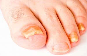Грибок на ногтевых пластинах ног
