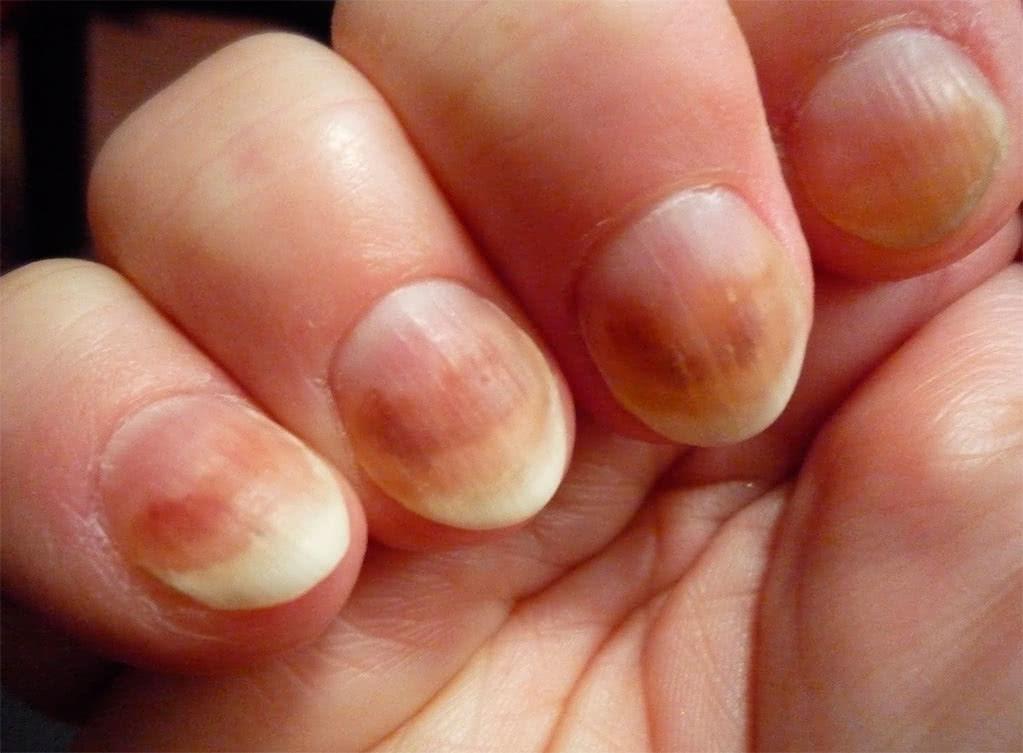 Кандидоз ногтей инфекционный