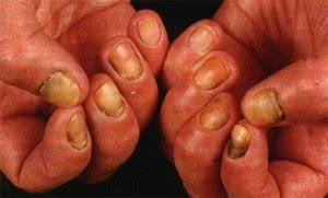 Кандидоз на ногтяг