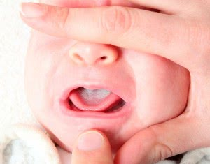 кандидоз у новорожденного