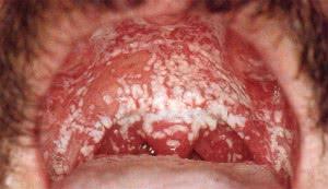 молочница во рту