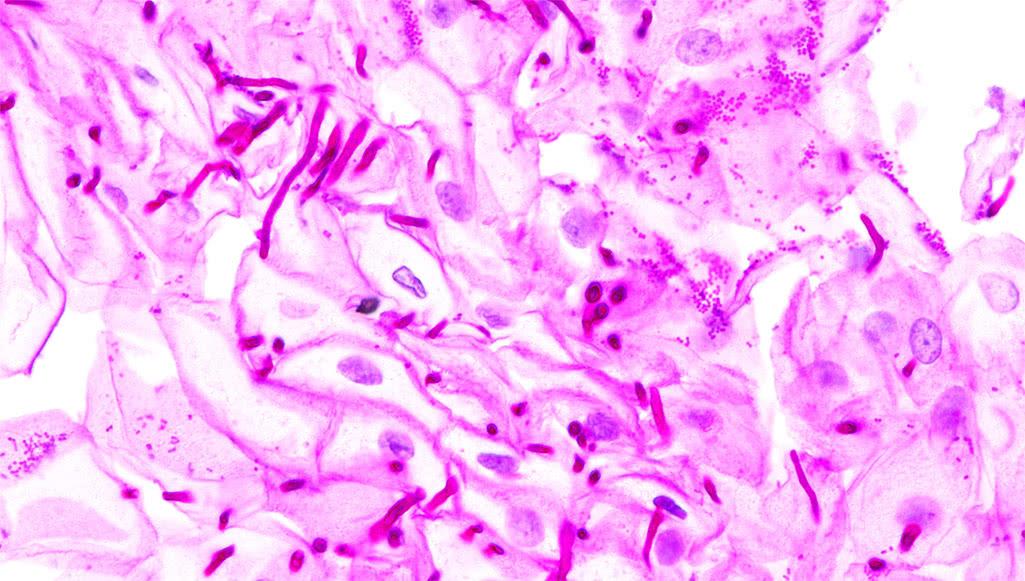 аллергия во влагалище симптомы