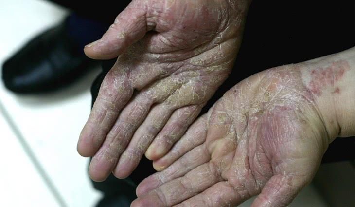 Кандидоз рук