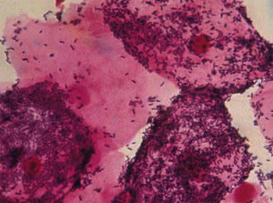 Бактерия, вызывающая гарднереллез