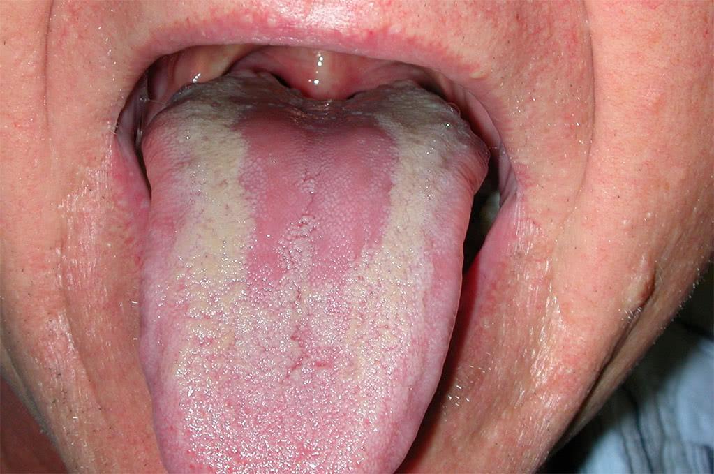 Кандидозный глоссит оральный секс