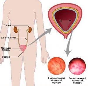 Воспаление мочевого пузыря (цистит)
