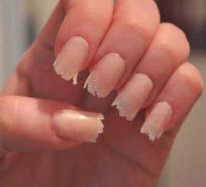 Кандидоз ногтей
