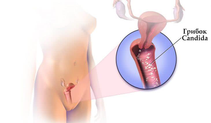 Виды молочницы у женщин и мужчин