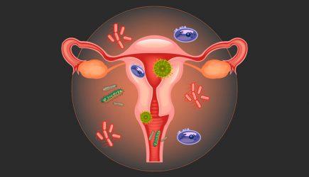 Молочница после секса без презерватива частая женская проблема