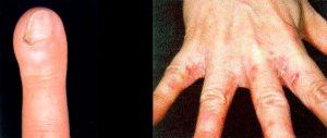 кандидоз ногтей и рук
